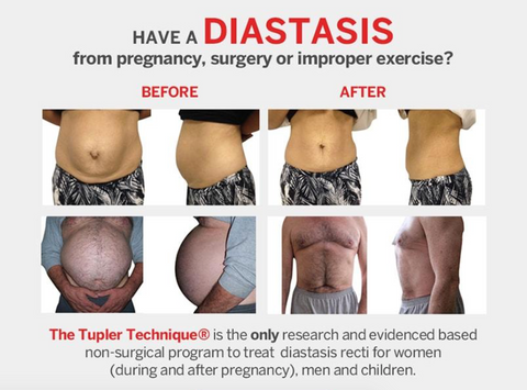 Before and After Diastasis Treatment
