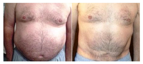 Before and After Diastasis Recti