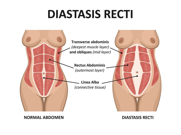 Diastasis Recti Diagram