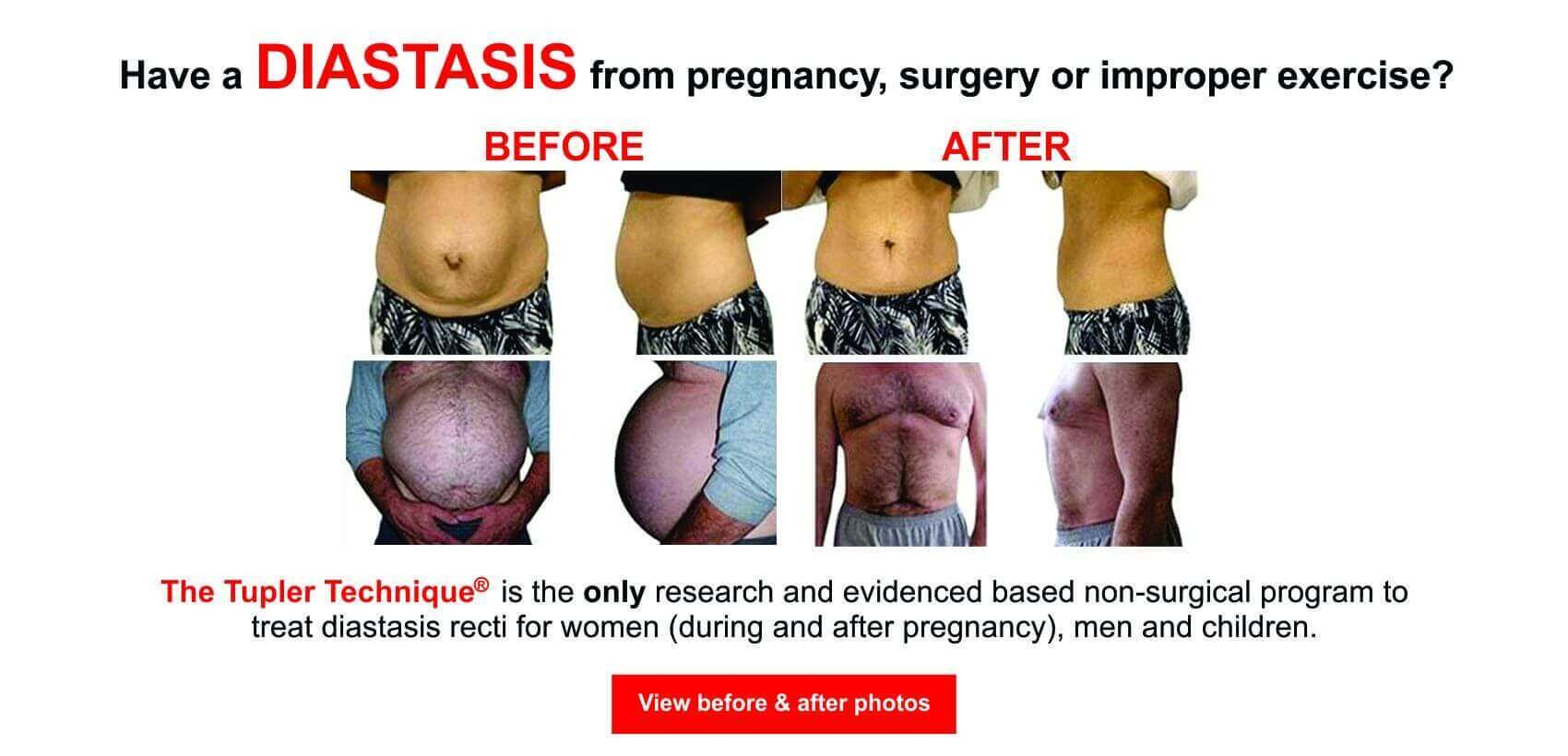 Diastasis Recti Treatment Program Exercise Program For Abdominal Separation