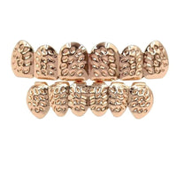 Rose Gold Hip Hop D-Cut Top & Bottom Teeth Grillz - MajesticVUE