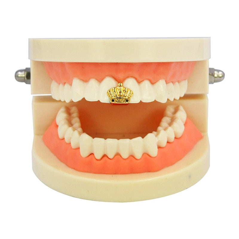 Gold Plated Single Crown Teeth Canine - MajesticVUE