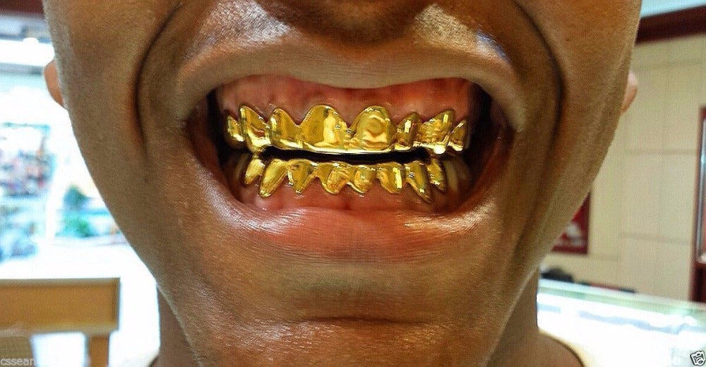 Gold Plated Drip Style Teeth Grillz - MajesticVUE