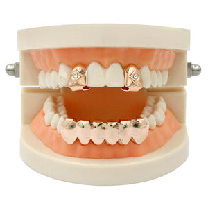 Rose Gold 2 Single Top & 6 Bottom Teeth Grillz - MajesticVUE