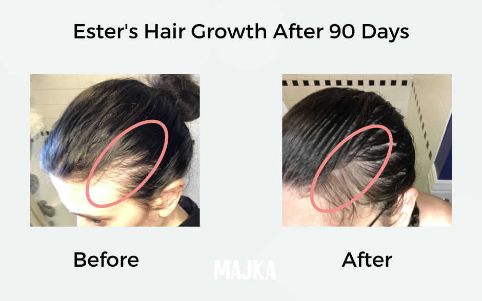 Ester Hair Results After Postpartum Hair Loss