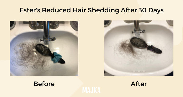 Reduced shedding after 30 days of hair recovery