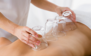 The Benefits of Cupping Therapy