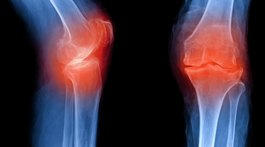 Does Collagen Really Help Arthritis | Vitality and Wellness Centre