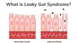 What Is Leaky Gut Syndrome Podcast | Vitality and Wellness Centre