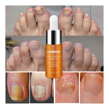 Nail Repair Essence Serum Fungal Nail Brightening Treatment Remove