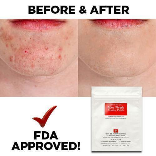 PimplePatch™ - Anti Acne & Blemish Remover