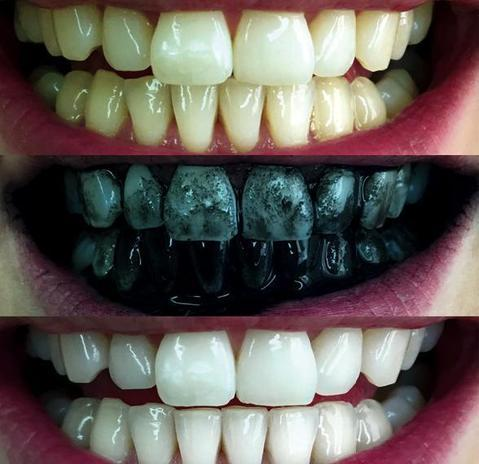 Activated Charcoal Teeth Whitening Tazels