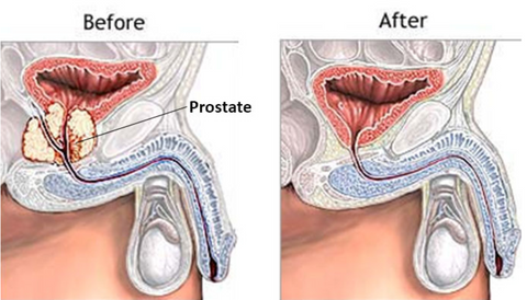 Radical Prostatectomy Before and After - Prostate Surgery
