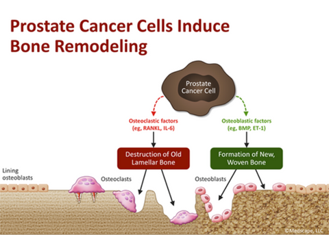 Bone-Directed Treatment | Treatment Options for Localized Prostate Cancer - Pacey MedTech Blog