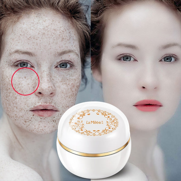 [Buy 1 get 1 Free]Lady skin magic cream Glow freckles whitening cream freckles tan plaques  Facial skin care brighter New 38g