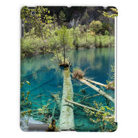 Blue Water Lake Tablet Case Ipad 2 3 4 Phone & Cases