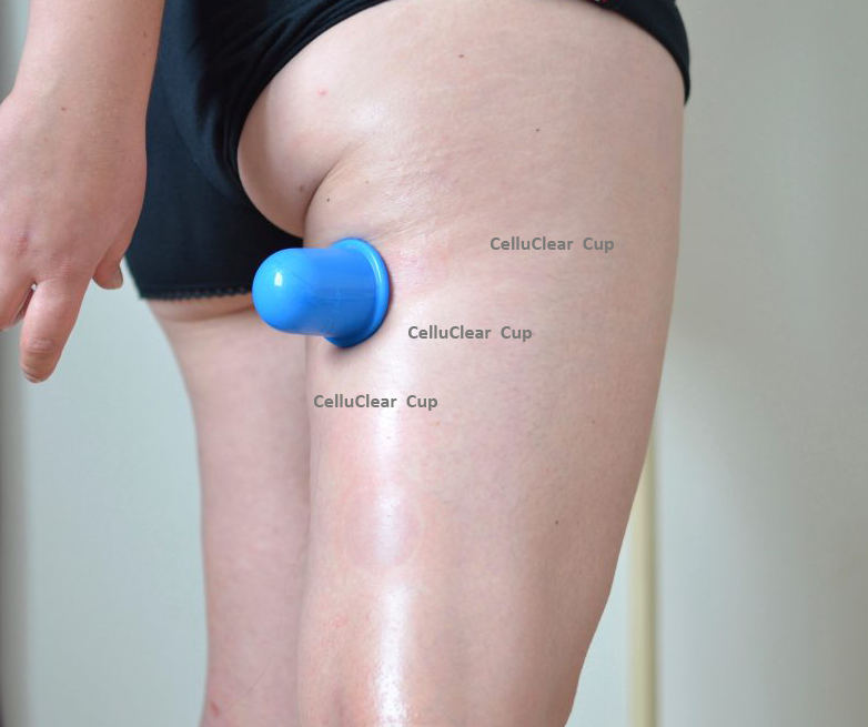 Celluclear © Anti Cellulite Cup (S)