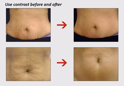 Powerful Stretch Mark & Anti Aging Cream