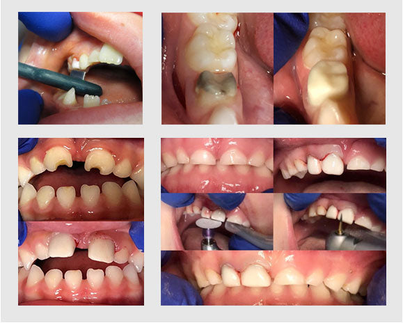 Dental Crown Placement Examples