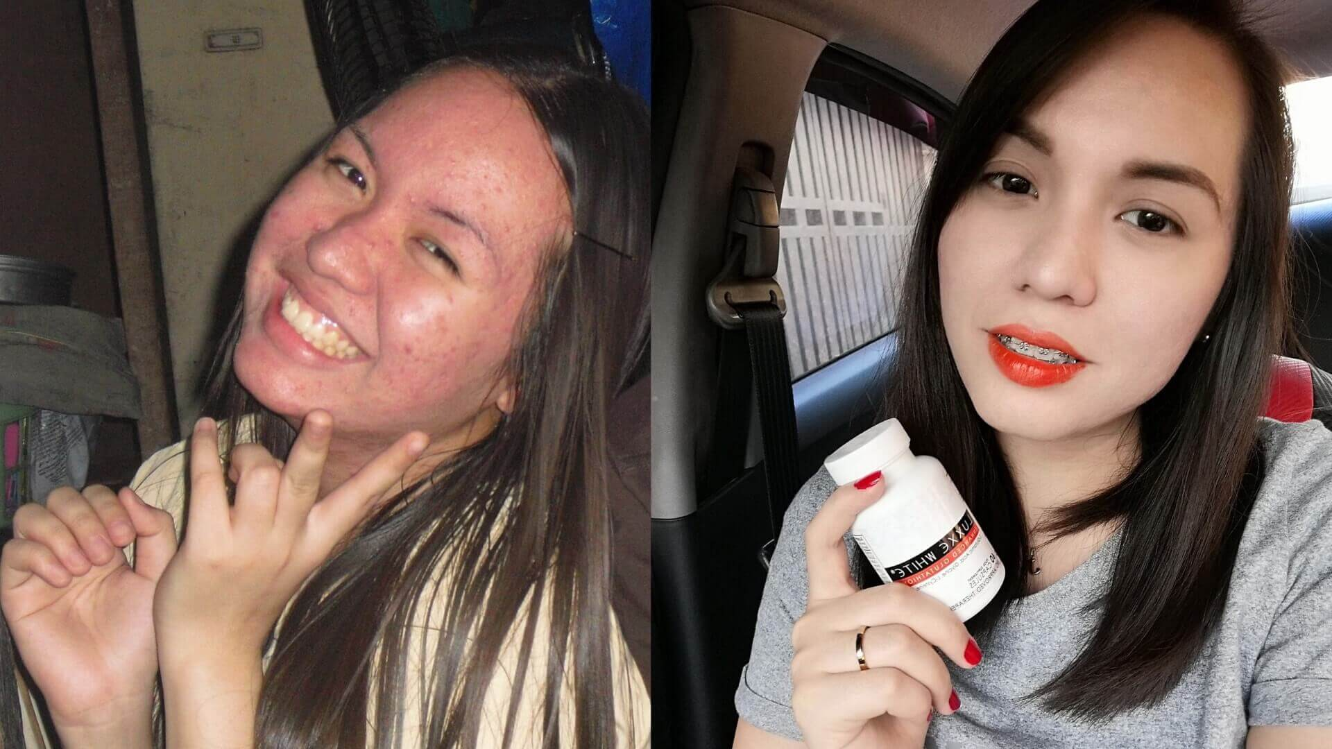 Luxxe White Review Before and After Of Jem Kikuchi