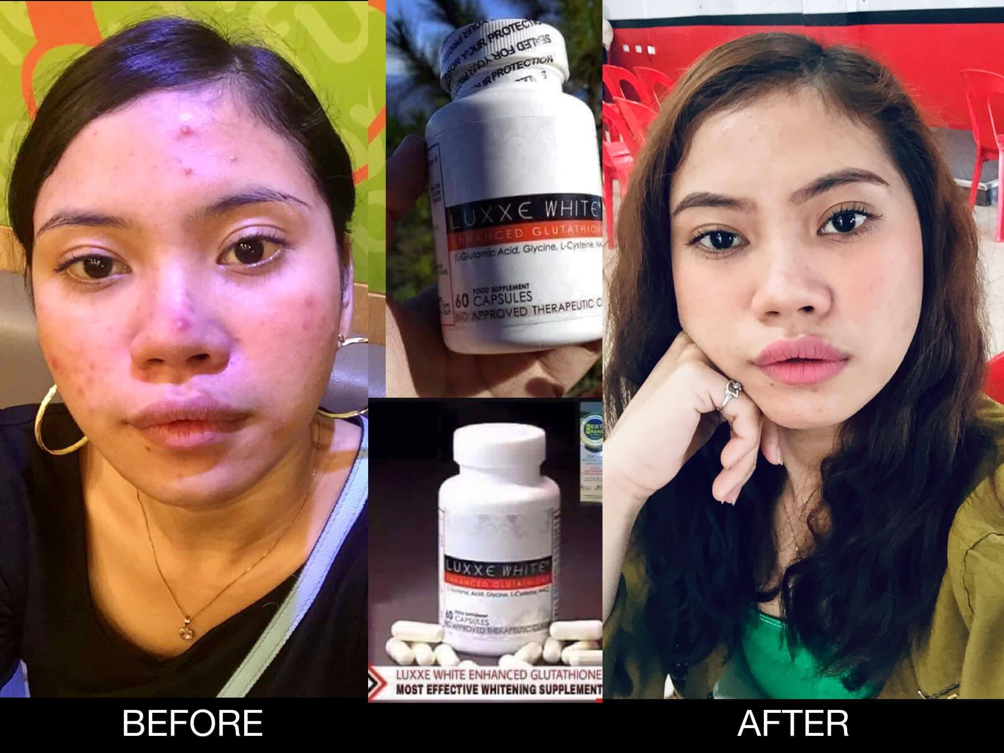 Luxxe White and Luxxe Protect Testimony by Marie Nila Englis Serada