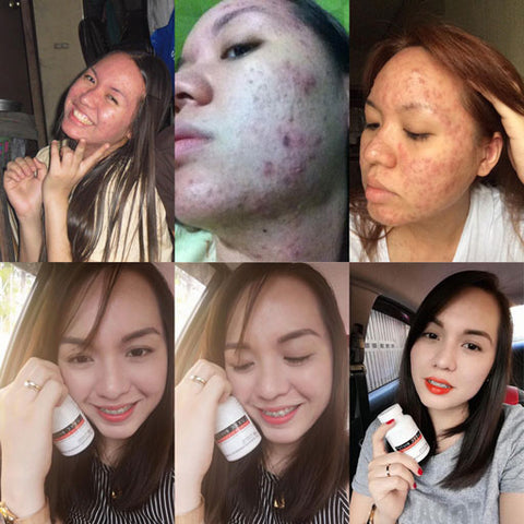 best skin whitening supplement for acne and pimples