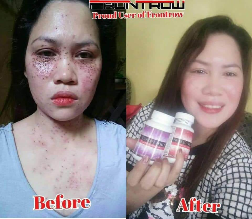 luxxe renew and luxxe protect before and after
