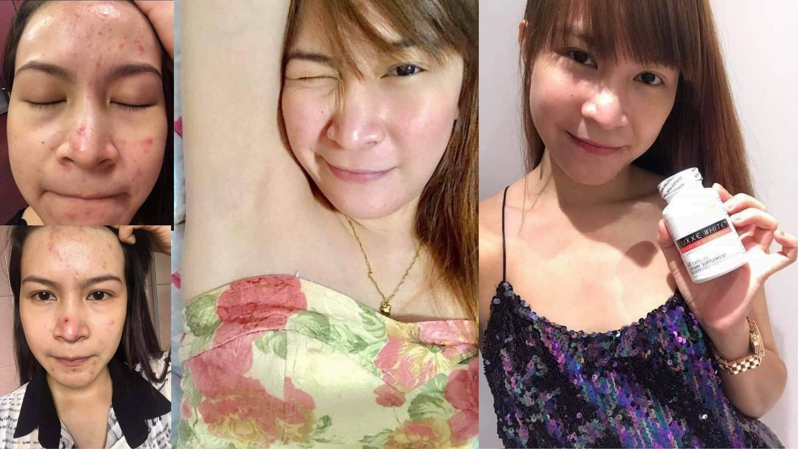 luxxe white before and after pimples and underarm