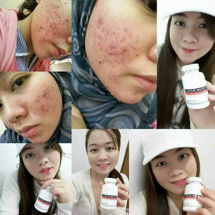 luxxe white before and after female pimples