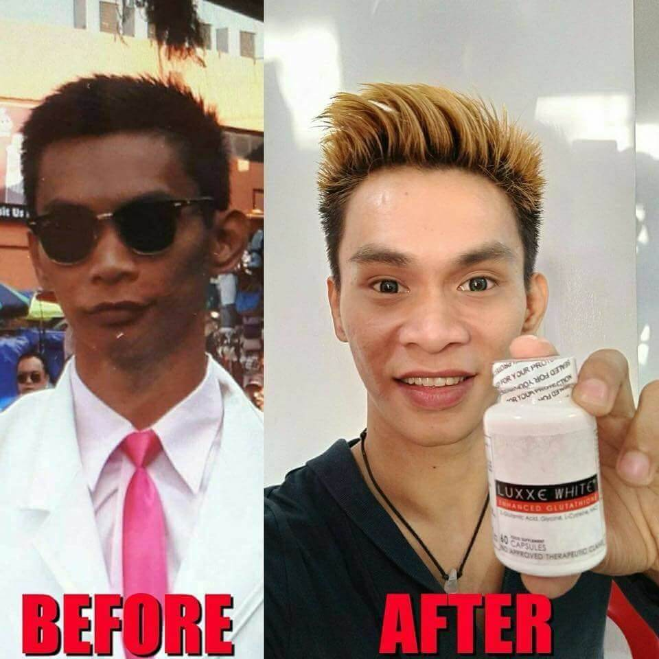 luxxe white best glutathione for black skin review