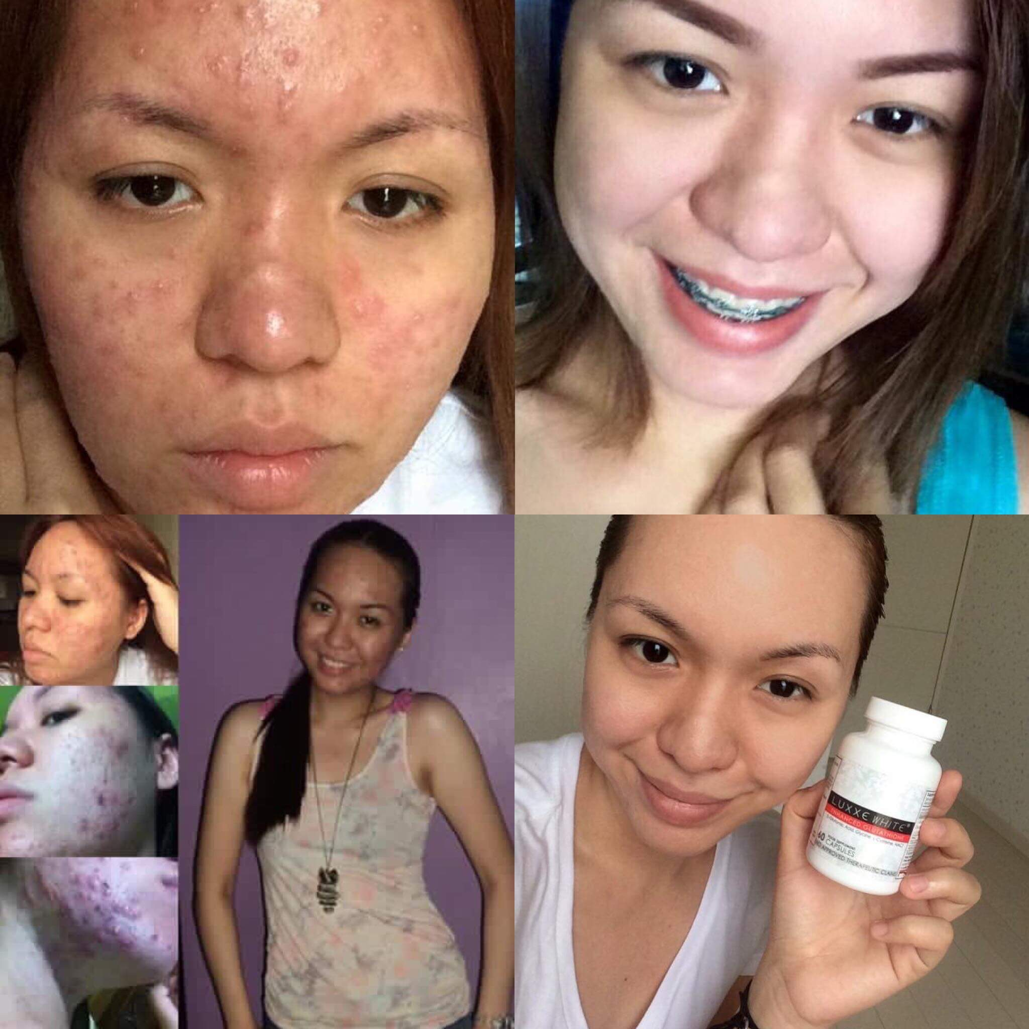 luxxe white glutathione review before and after acne