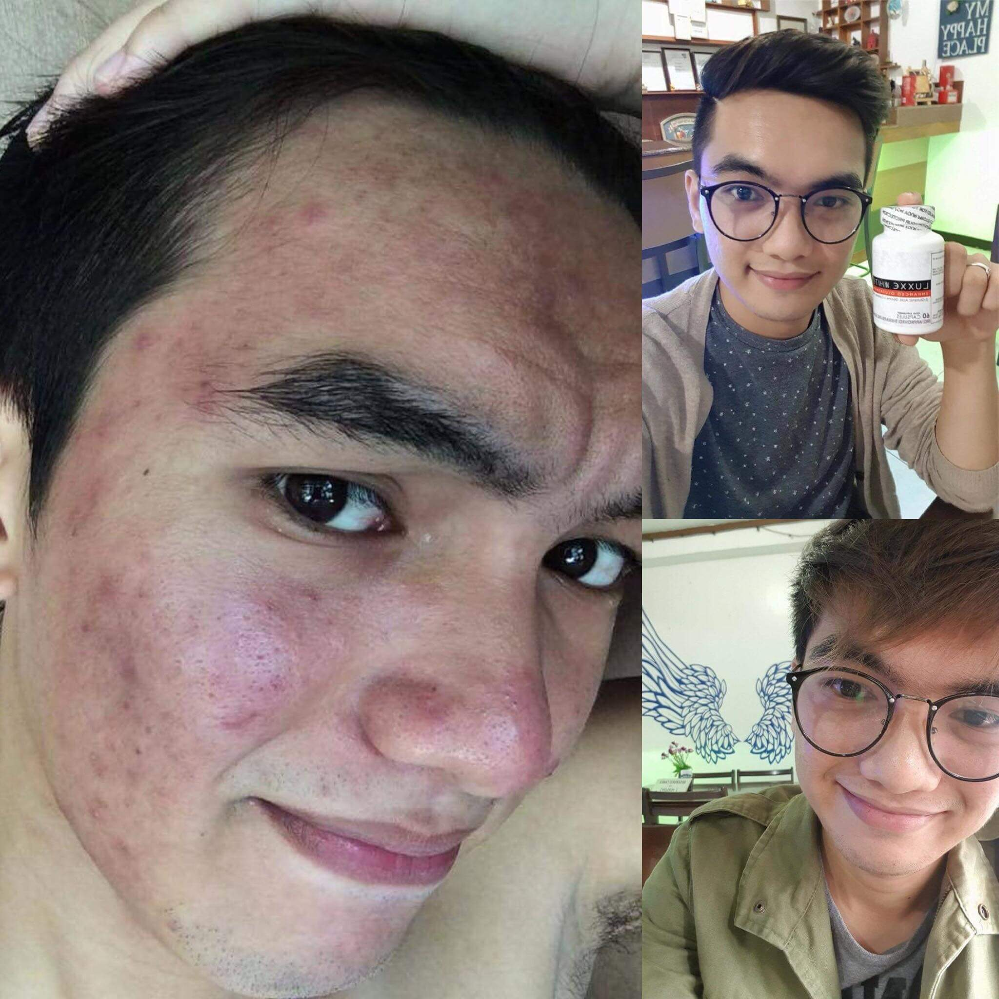 luxxe white user testimony pimples men