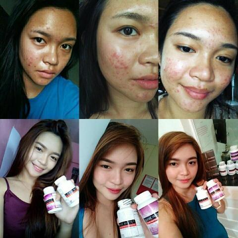 luxxe white enhanced glutathione users feedbacks