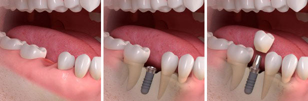 dental implant process diagram