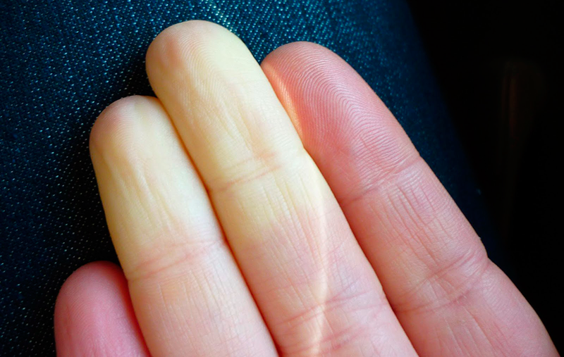 Image shows an individual with white coloured fingers as a result of Raynaud's