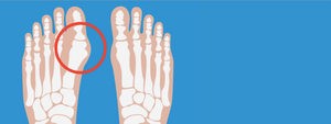 Bunions: Everything You Need to Know