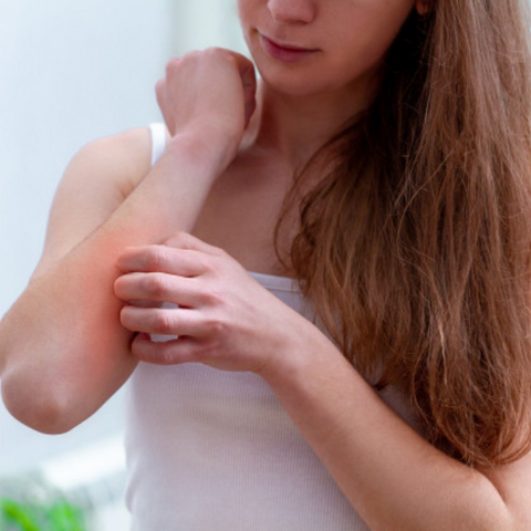 do not scratch or rub your skin when itchy and redness