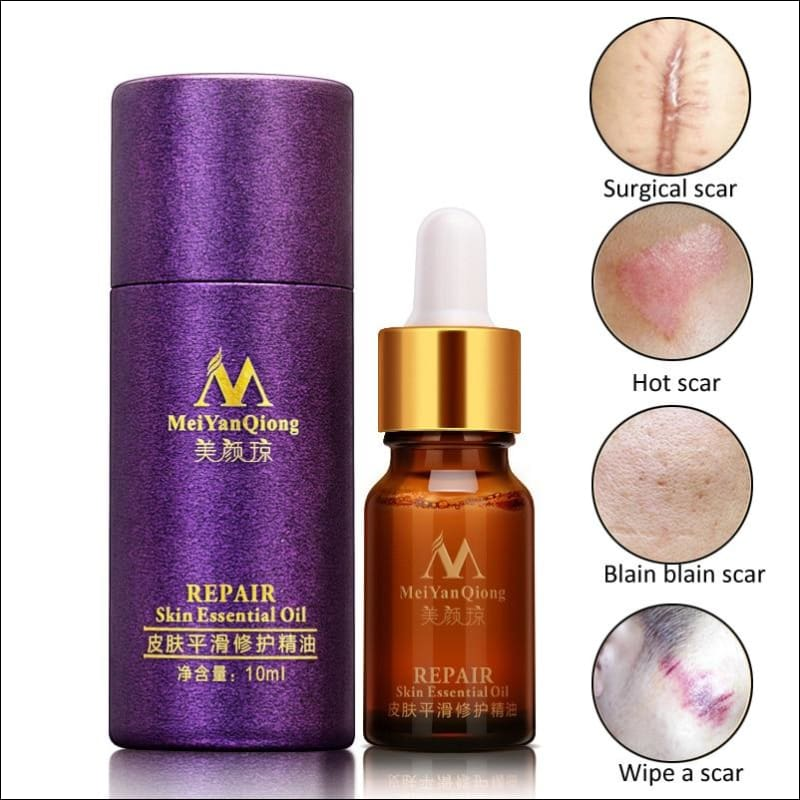 Skin Care Spots Acne Scar Removal Pigmentation Corrector Whitening Repair Lavender Essential Oil