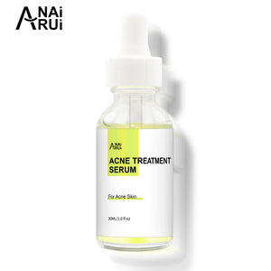 Acne treatment serum - ANAIRUI 30ml
