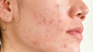 Caucasian woman with hormonal acne on face