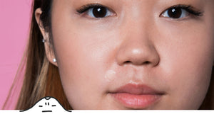 Asian girl with Mighty Patch Invisible+ on upper lip area