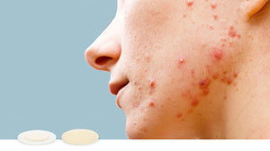 Woman with acne and acne scarring on jaw and cheek
