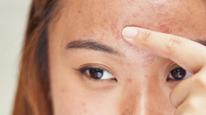 Woman pointing to acne on forehead