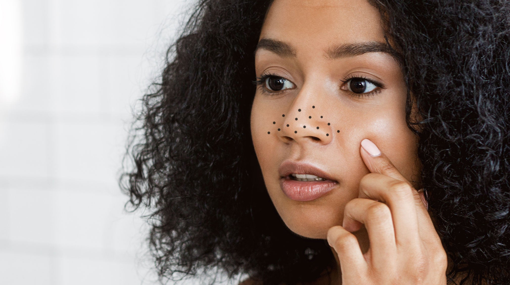Dermatologists Explain How to Get Rid of Blackheads
