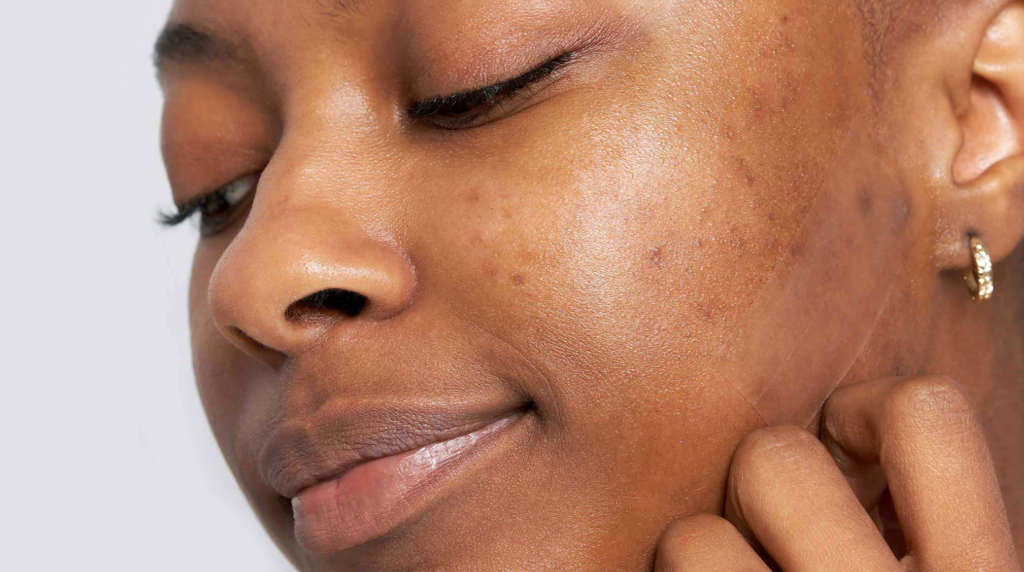 Dark skinned woman showing acne scars and hyperpigmentation on cheek