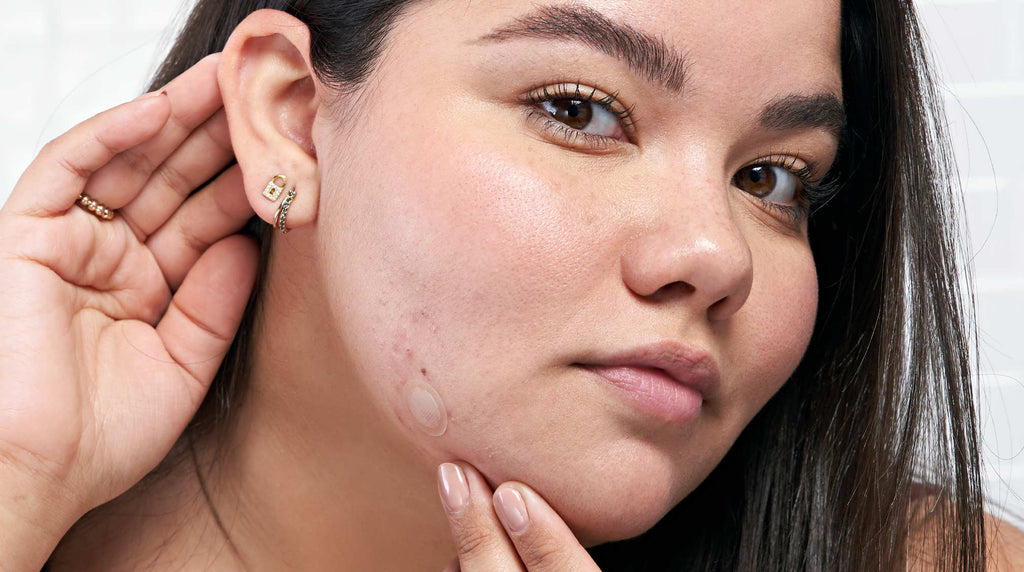 Dealing With Post Inflammatory Erythema Fade Red Marks After Acne Hero Cosmetics
