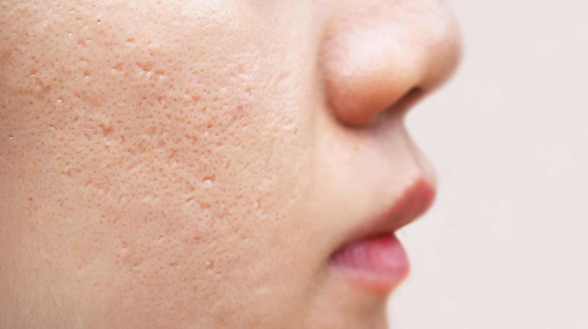 How to get rid of acne scars according to experts