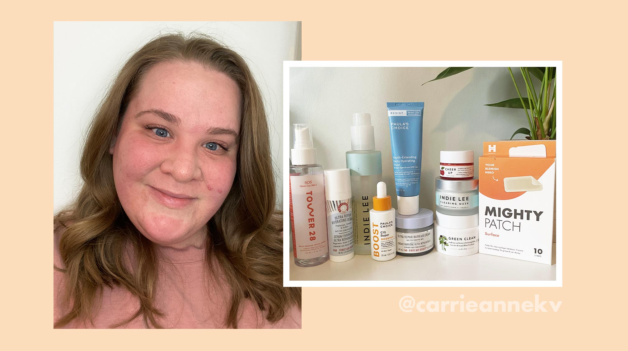 What Pcos Taught Beauty Influencer Carrie Anne About Self Care Hero Cosmetics
