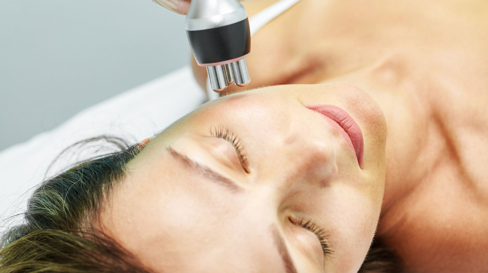 Highlighting Laser Skin Resurfacing: What It Is and What to Expect