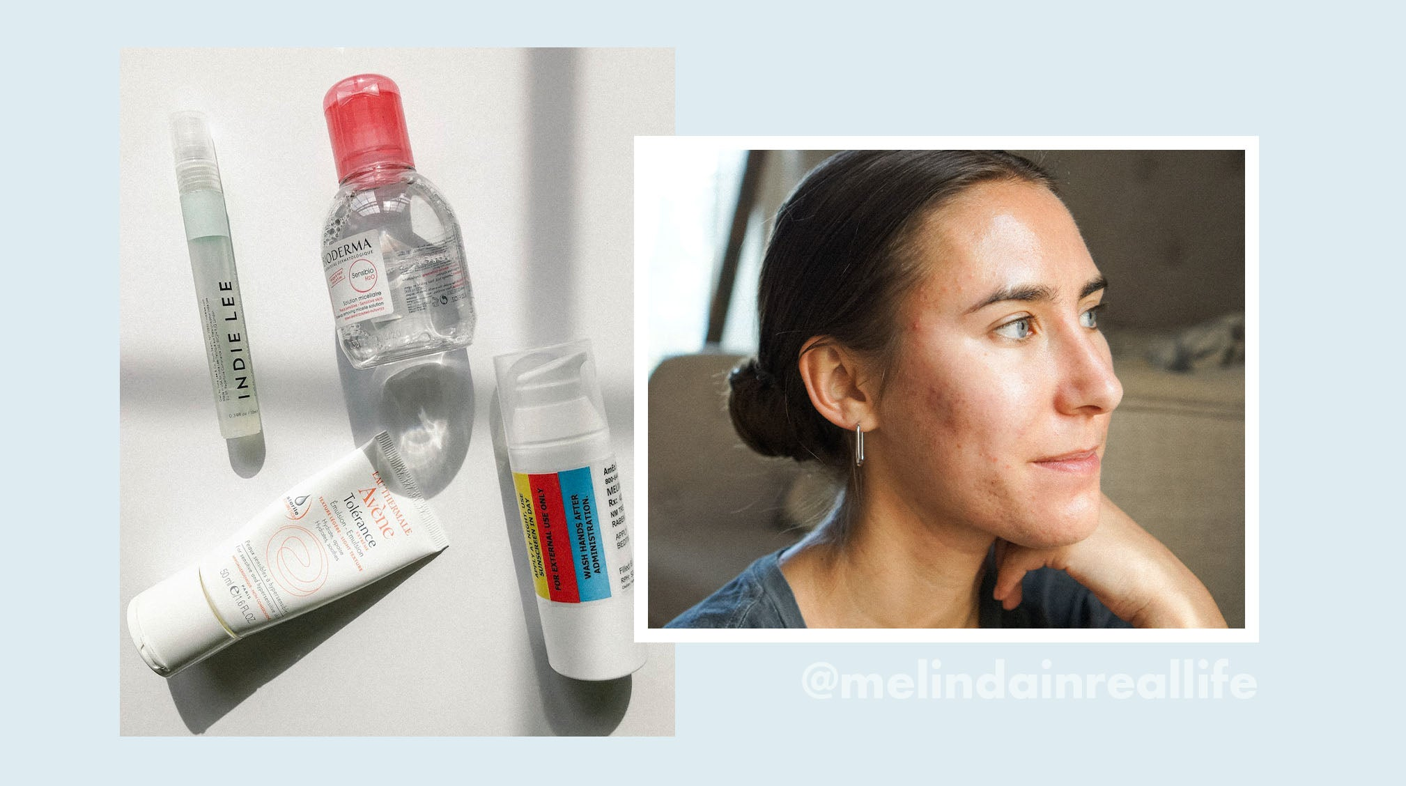 Acne Influencer Melinda Renzoni Shares the Ups and Downs of Her Acne Journey